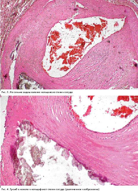 Фиброинтимальная гиперплазия