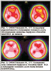 Medicus Amicus - Хроническая гипертоническая энцефалопатия