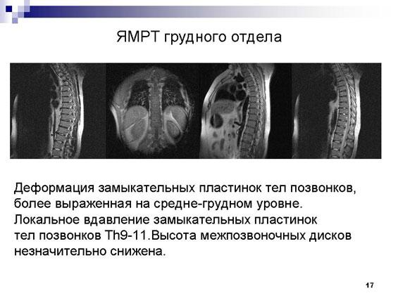 Деформирующий спондилоартрит или болезнь Бехтерева (клинический случай)