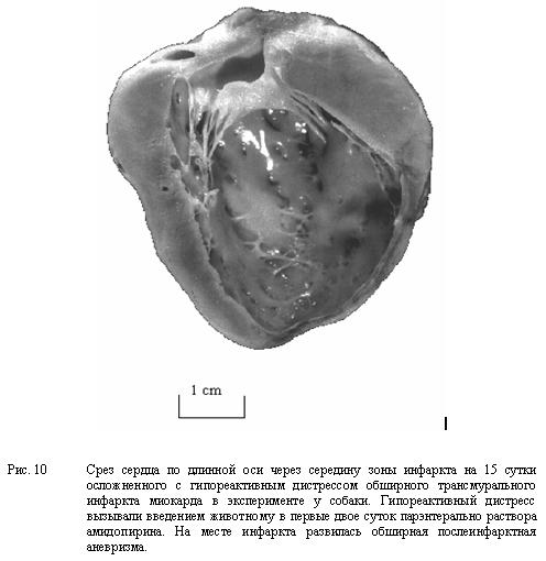 Срез сердца по длинной оси через середину зоны инфаркта на 15 сутки осложненного с гипореактивным дистрессом обширного трансмурального инфаркта миокарда в эксперименте у собаки