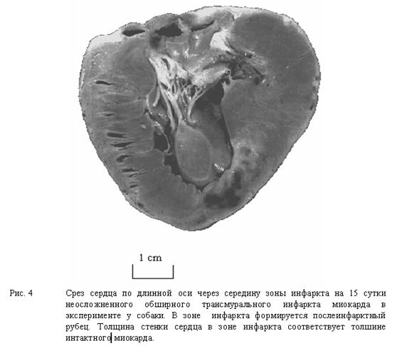 Срез сердца по длинной оси через середину зоны инфаркта на 15 сутки неосложненного обширного трансмурального инфаркта миокарда в эксперименте у собаки.
