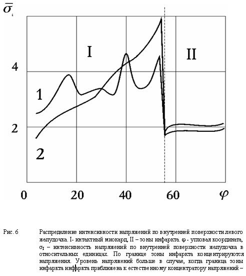 Распределение интенсивности напряжений по внутренней поверхности левого желудочка