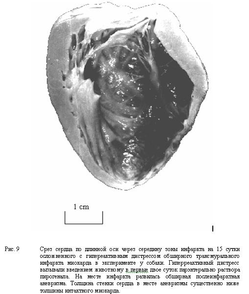 Срез сердца по длинной оси через середину зоны инфаркта на 15 сутки осложненного с гипереактивным дистрессом обширного трансмурального инфаркта миокарда в эксперименте у собаки