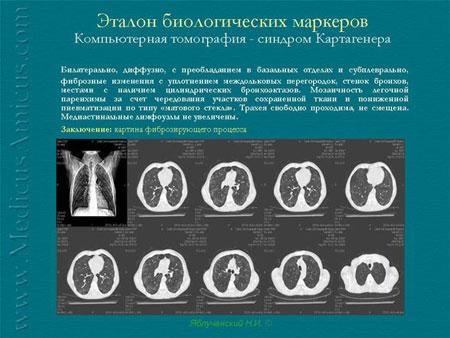 Конечные несуррогатные и суррогатные точки в клинических испытаниях лекарственных средств